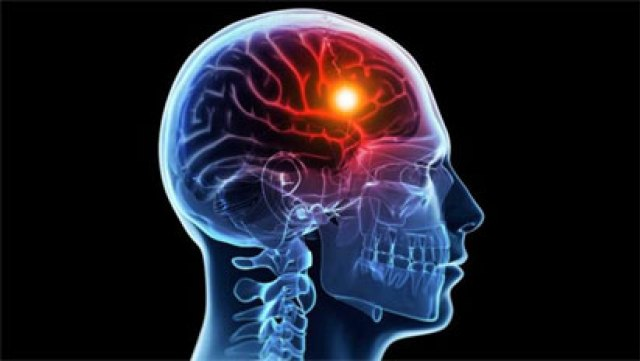 Stroke : 100,000 Nigerians Affected Yearly – – NSO
